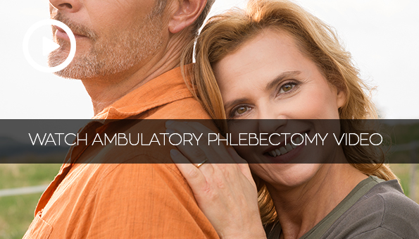 Ambulatory Phlebectomy